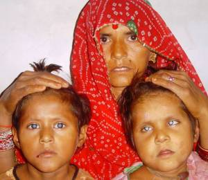 Mother with 2 blind kids