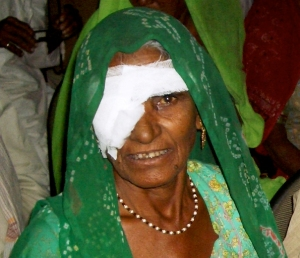 Woman in green smiling after surgery 2005-11-17 India II 740