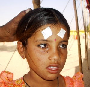 Young girl after treatment 2005-11-17 India II 668